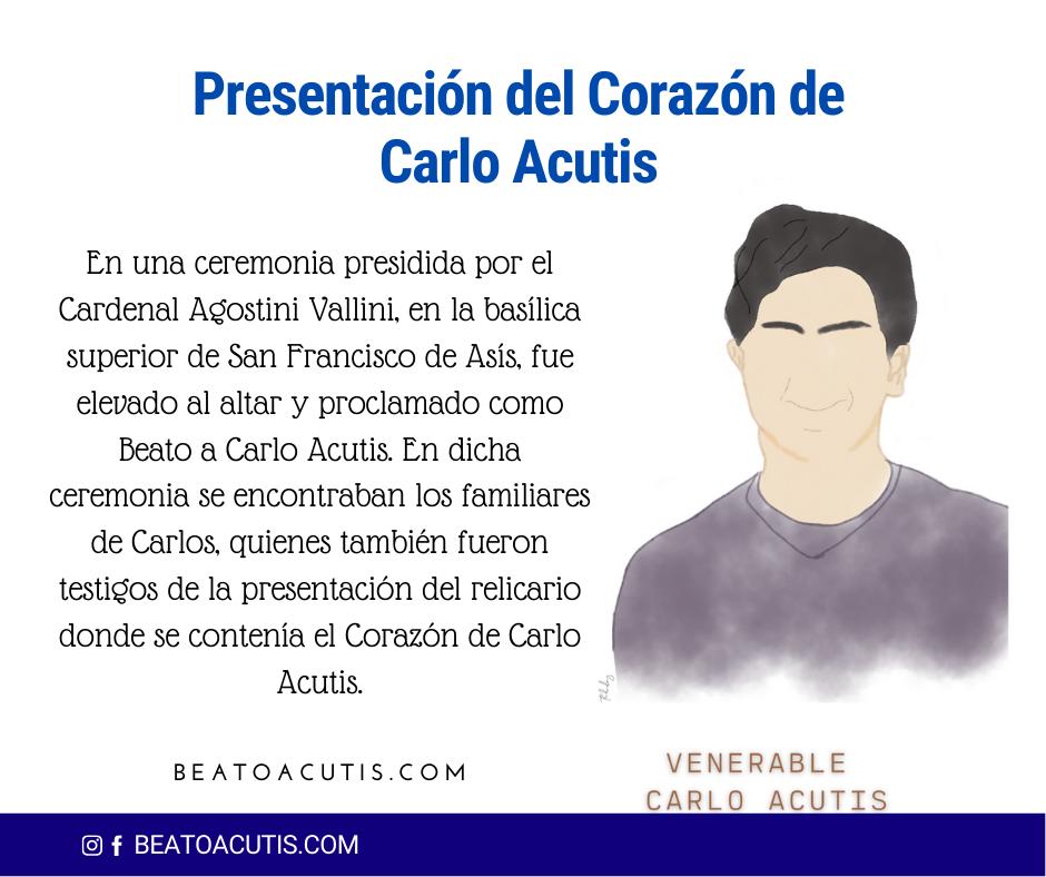 Corazón de Carlo Acutis